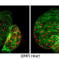 Scientists find key protein in embryo cardiac development