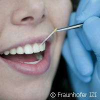 Hope for millions of Germans suffering from periodontitis