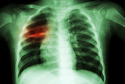Fast, accurate and cost-effective diagnoses to tackle respiratory infections