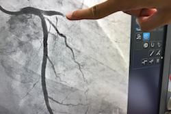 'Virtual Artery' takes us closer to improved prediction of treatment side-effects