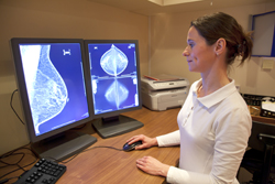 Radiation and the risk of breast cancer