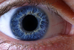 Gene therapy for retinal disorders