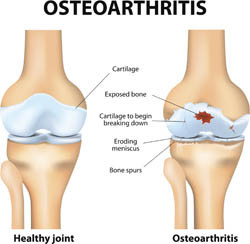 New biomarkers for osteoarthritis