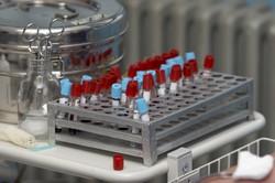 Analisi dei dati delle biobanche armonizzati per favorire la ricerca