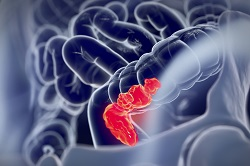 New, tumour-specific therapy for colorectal cancer patients