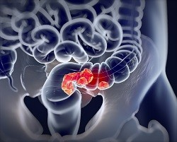 Analysing microbial influence in colorectal cancer