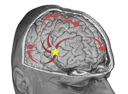 New methodologies examine communication between brain regions in epilepsy patients to improve treatment
