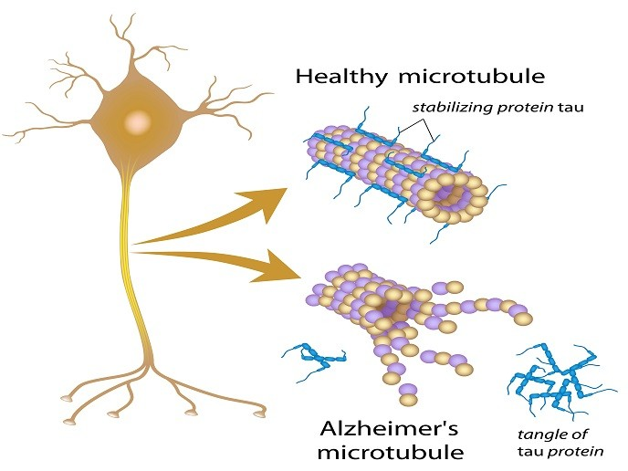 Tau Protein Leads To Neuronal Death in Alzheimers